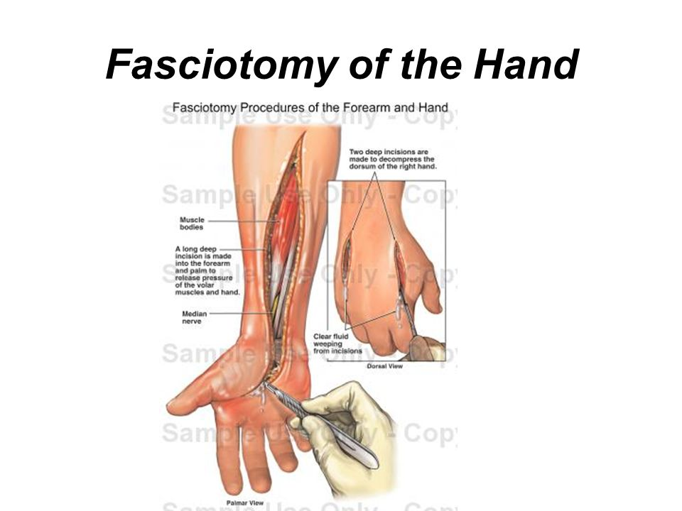 Compartment syndrome and fasciotomy - ppt download
