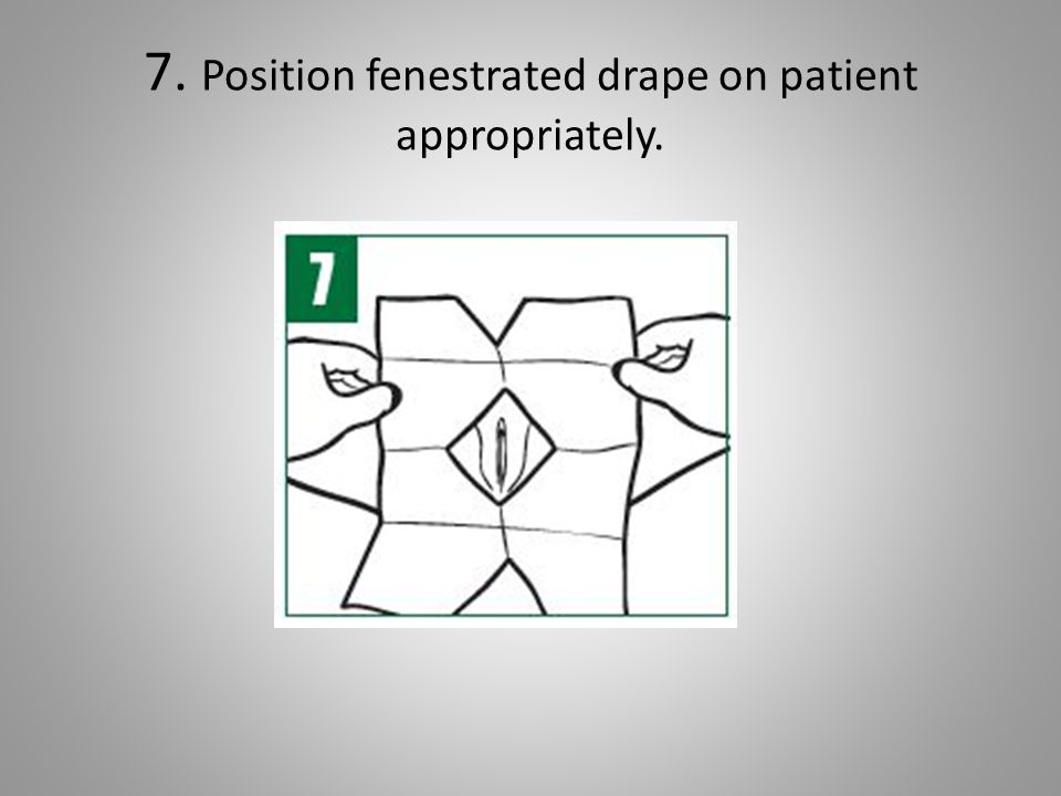 Bard Advance Foley Tray System Directions for Use  - ppt video