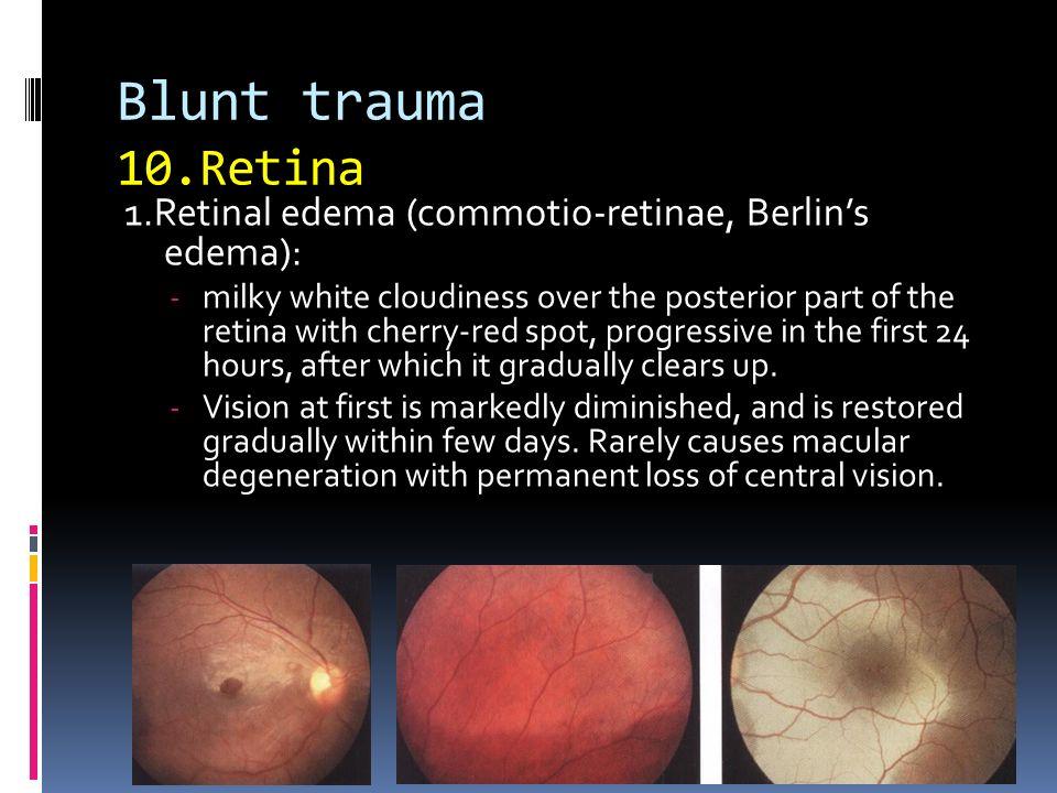 Retina 1Retinal Edema Commotio Retinae Berlins