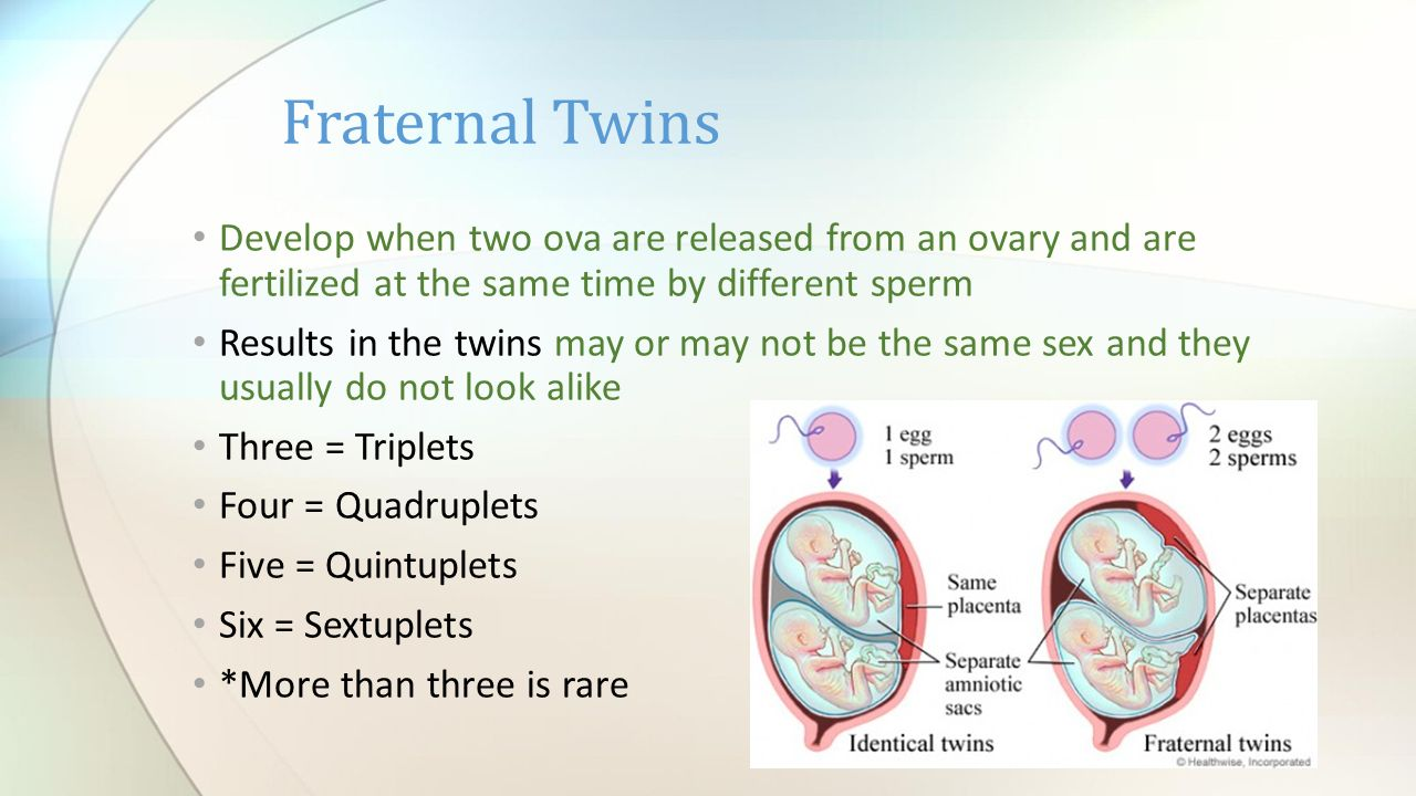 Image result for two ovum fertilized at the same time