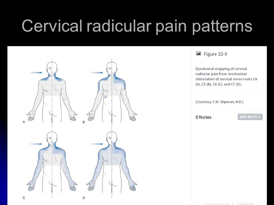 Rehabilitation of Neck Pain and Myofascial Pain Syndrome
