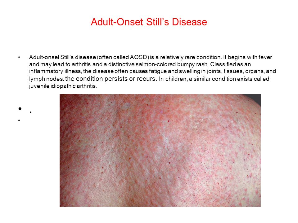 Adult onset rash