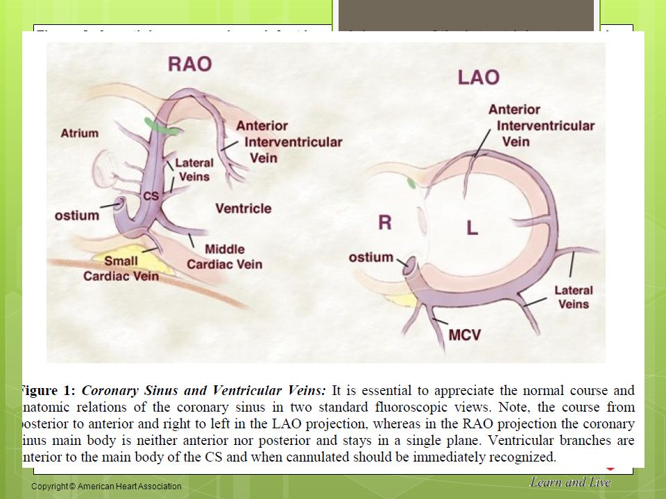 Anatomy Of Coronary Sinus And Clinical Application Ppt Video