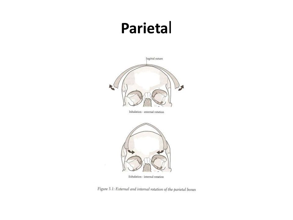 Parietal In flexion, paired bones (like the parietal bone) will externally rotate  this will widen the head and shorten the AP diameter.