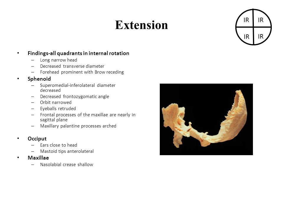 Extension IR IR IR IR Findings-all quadrants in internal rotation