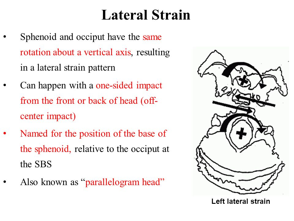 Lateral Strain Sphenoid and occiput have the same rotation about a vertical axis, resulting in a lateral strain pattern.