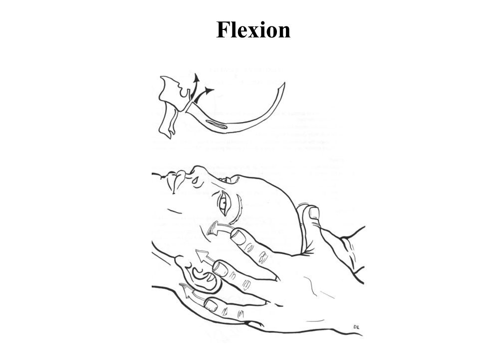 Flexion Shortening with flexion