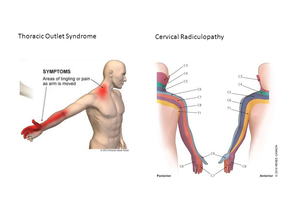 Thoracic Outlet Syndrome - ppt video online download
