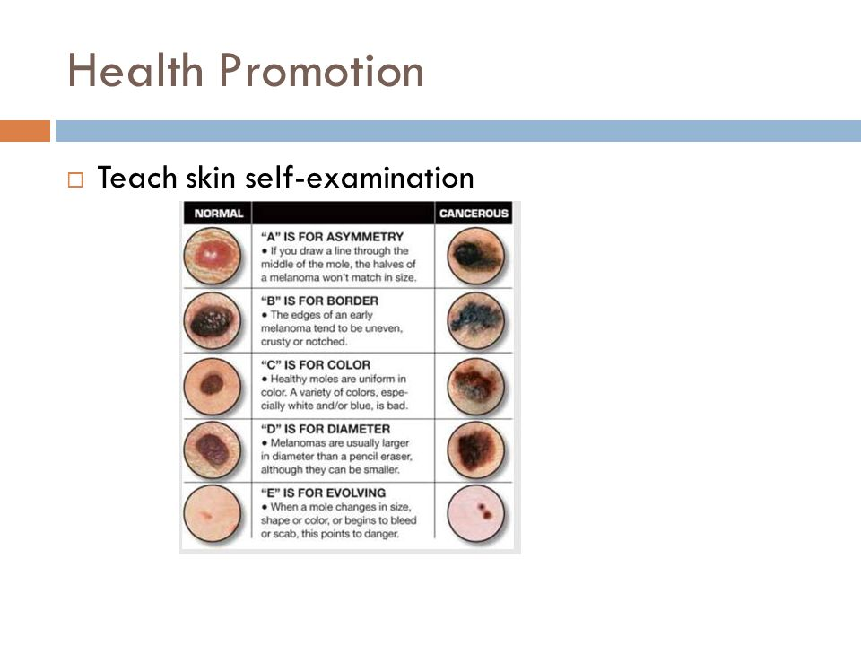 Week 7: Hair, skin, nails, head,neck, eyes, and ENT assessment - ppt