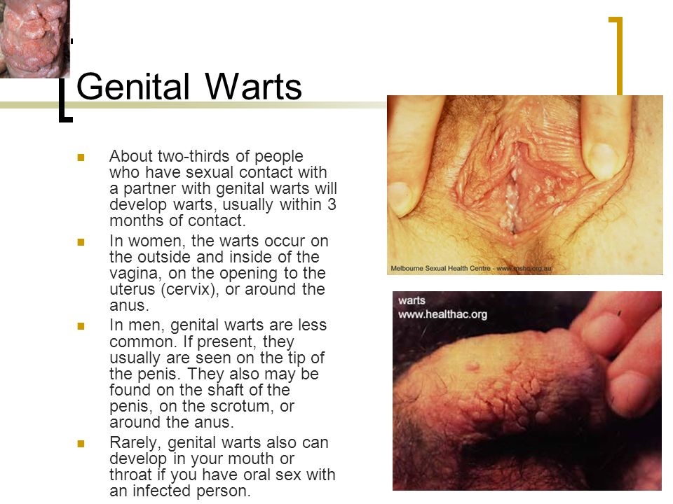 Sex with warts inside my vagina