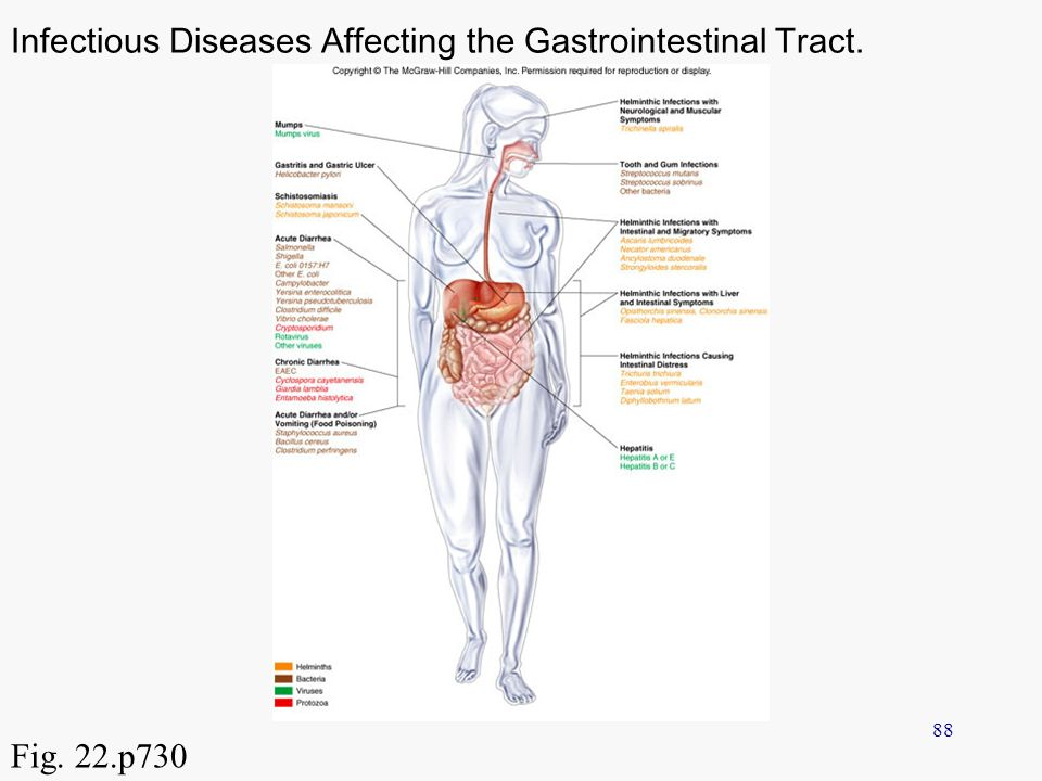 Chapter 23 Infectious Diseases Affecting The Gastrointestinal Tract