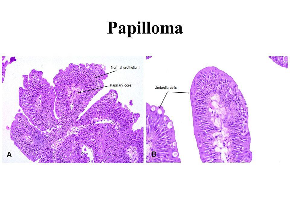 papillomatosis urinary tract)
