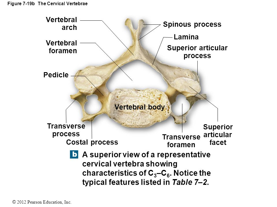 7-6 The Vertebral Column The Vertebral Column (Spine) - ppt video ...