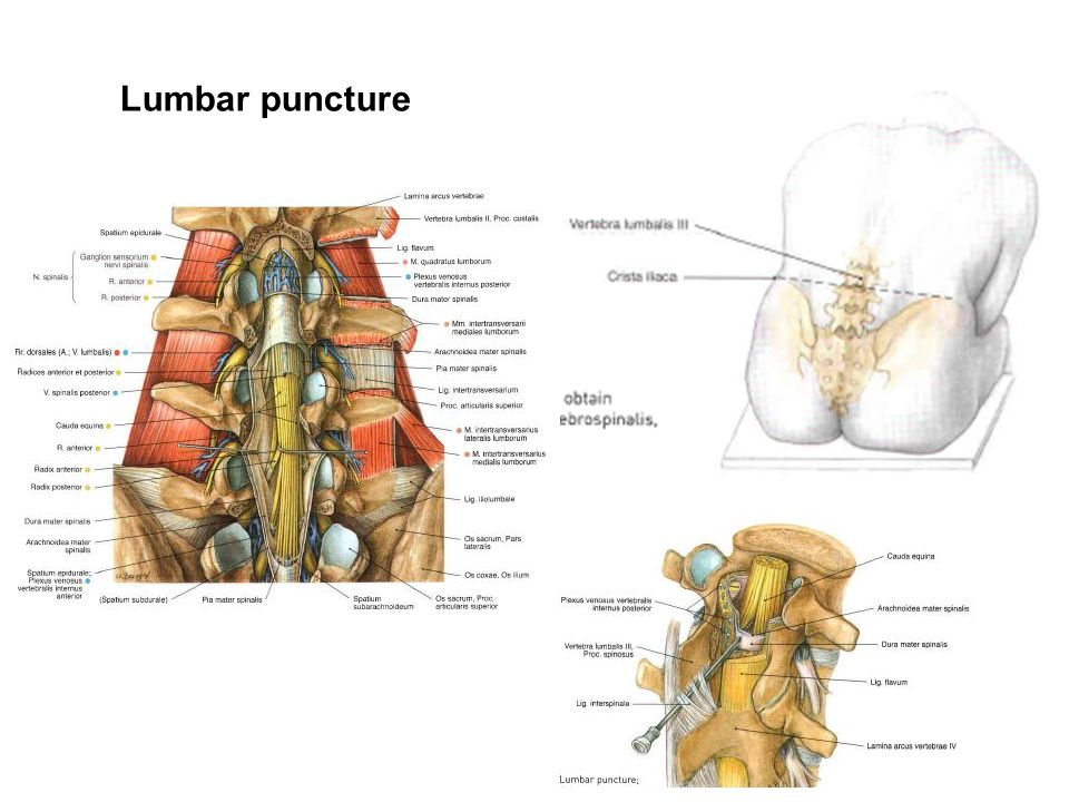 REGIONAL ANATOMY OF THE BACK - ppt video online download