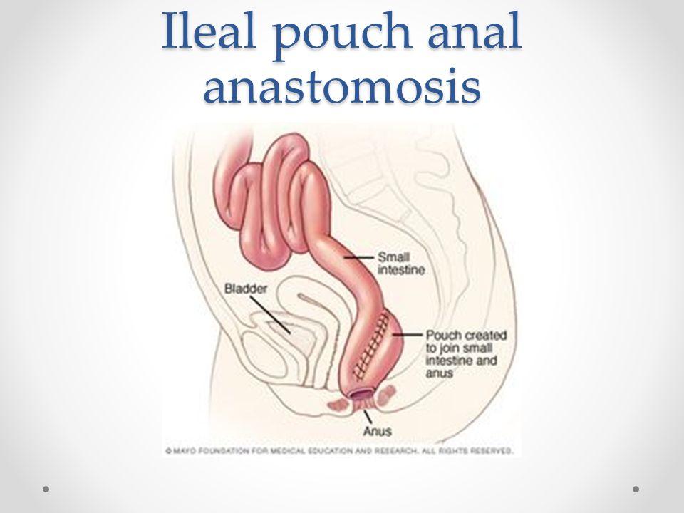 Anal colic anastomosis