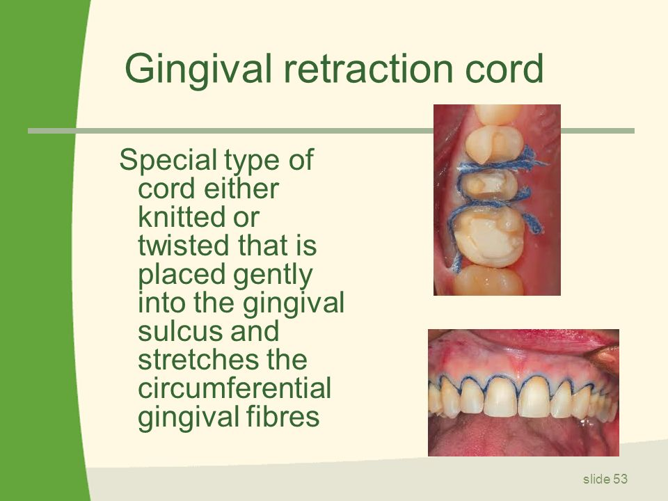 GINGIVAL RETRACTION CORD EBOOK DOWNLOAD