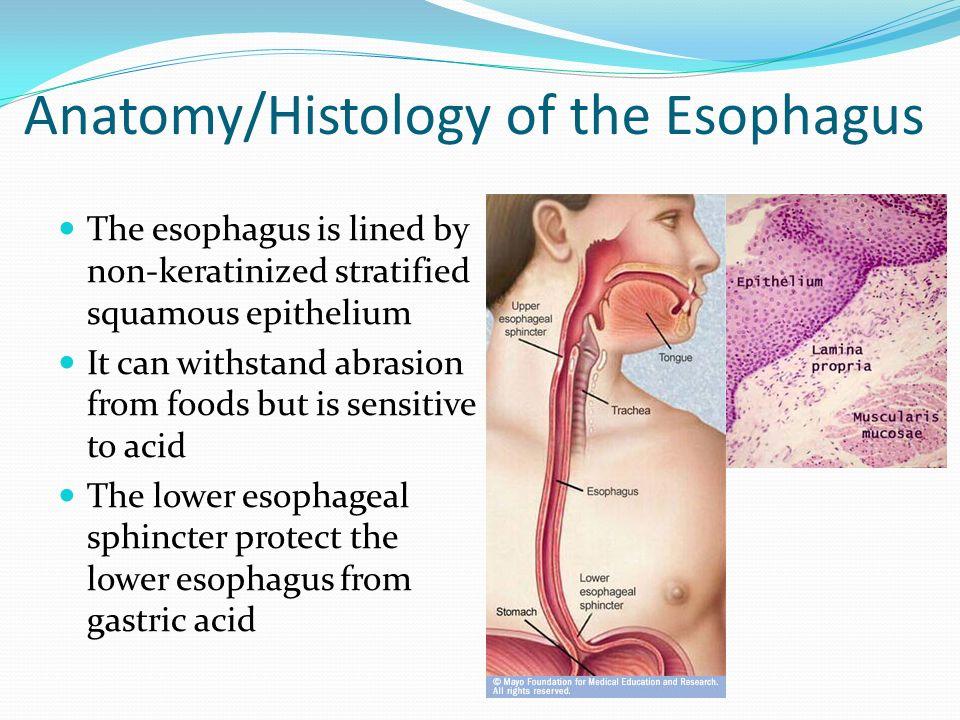 Disorders of the Esophagus - ppt video online download