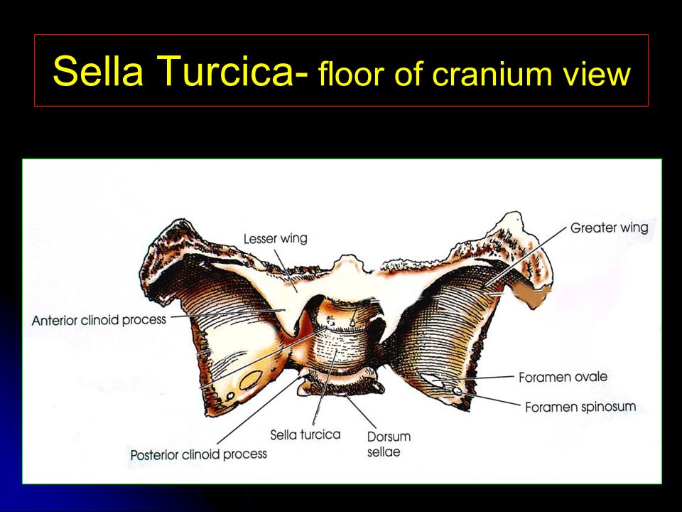 Sella Turcica Ppt Video Online Download