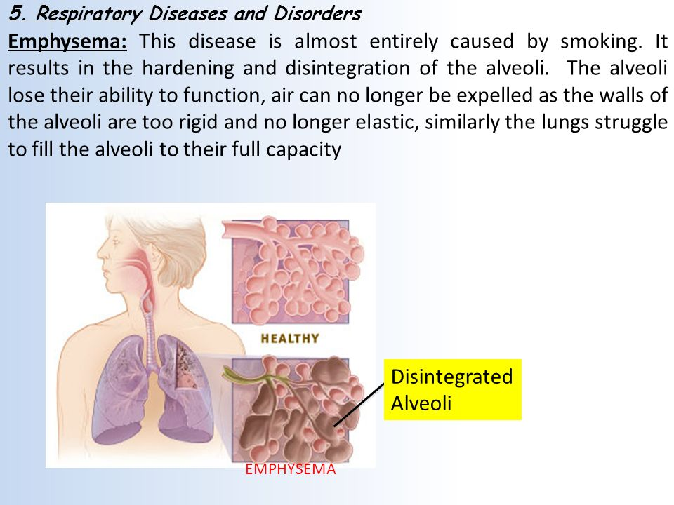 Lung Diseases Affecting the Air Sacs (Alveoli)