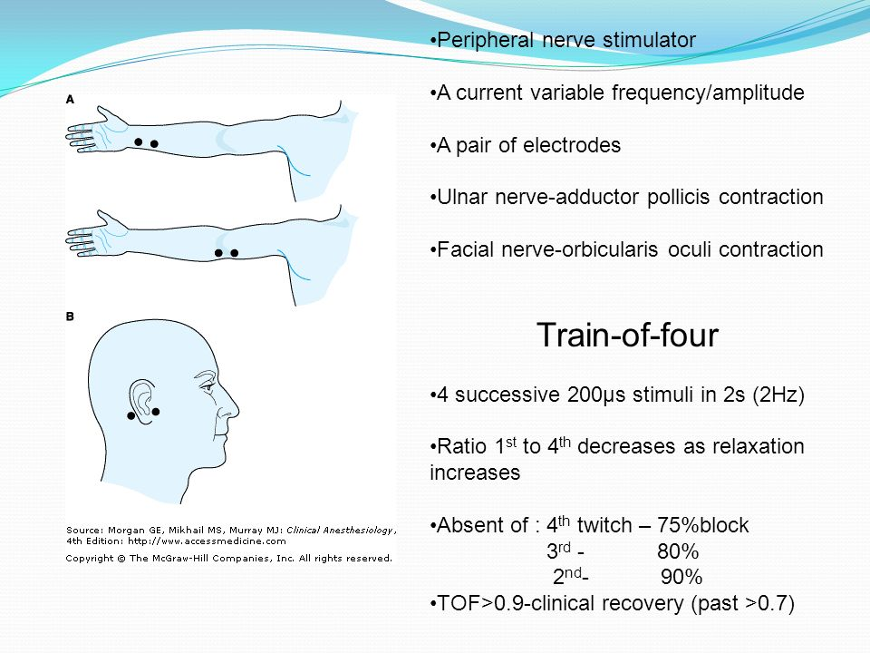Electrode placement for the facial nerve-3601