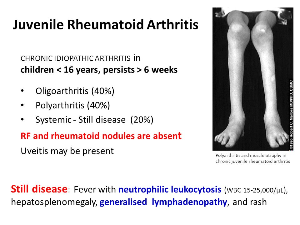 discussing a problem statement for rheumatoid arthritis Rheumatoid arthritis - she was diagnosed with ra and treated by a local rheumatologist 20 years ago past treatments included oral gold, penicillamine, two short bouts of oral prednisone, multiple intraarticular steroid injections.