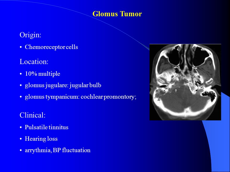 Glomus Tumor Origin: Location: Clinical: Chemoreceptor cells