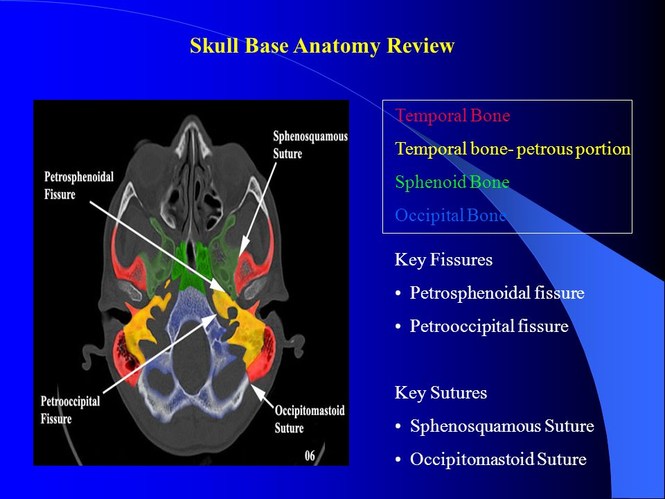 SKULL BASE REVIEW AND PATHOLOGY. - ppt video online download