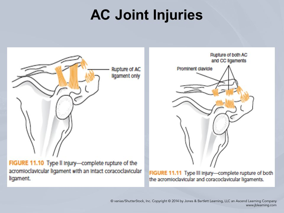 Injuries To The Shoulder Region Ppt Download