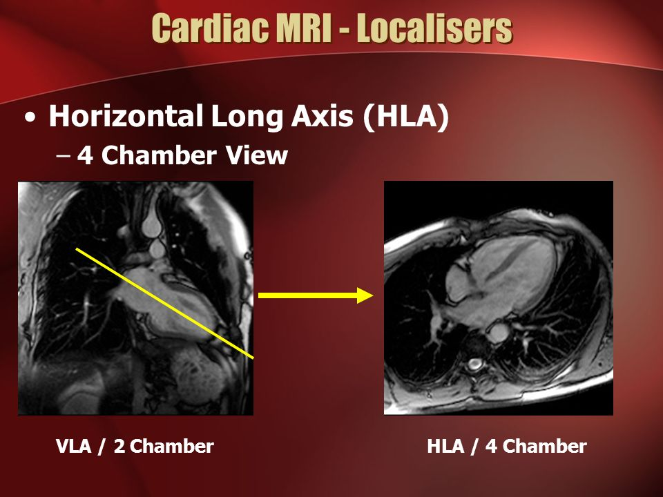 A Typical Cardiac Mri Study Ppt Video Online Download