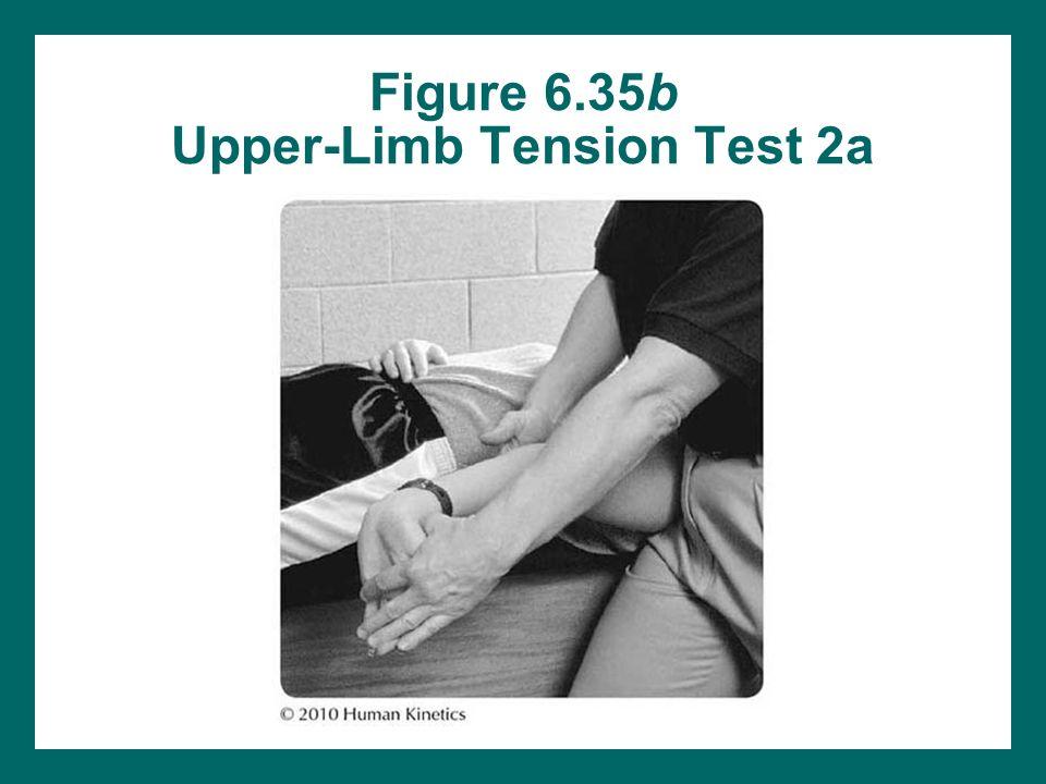 upper limb tension test pdf