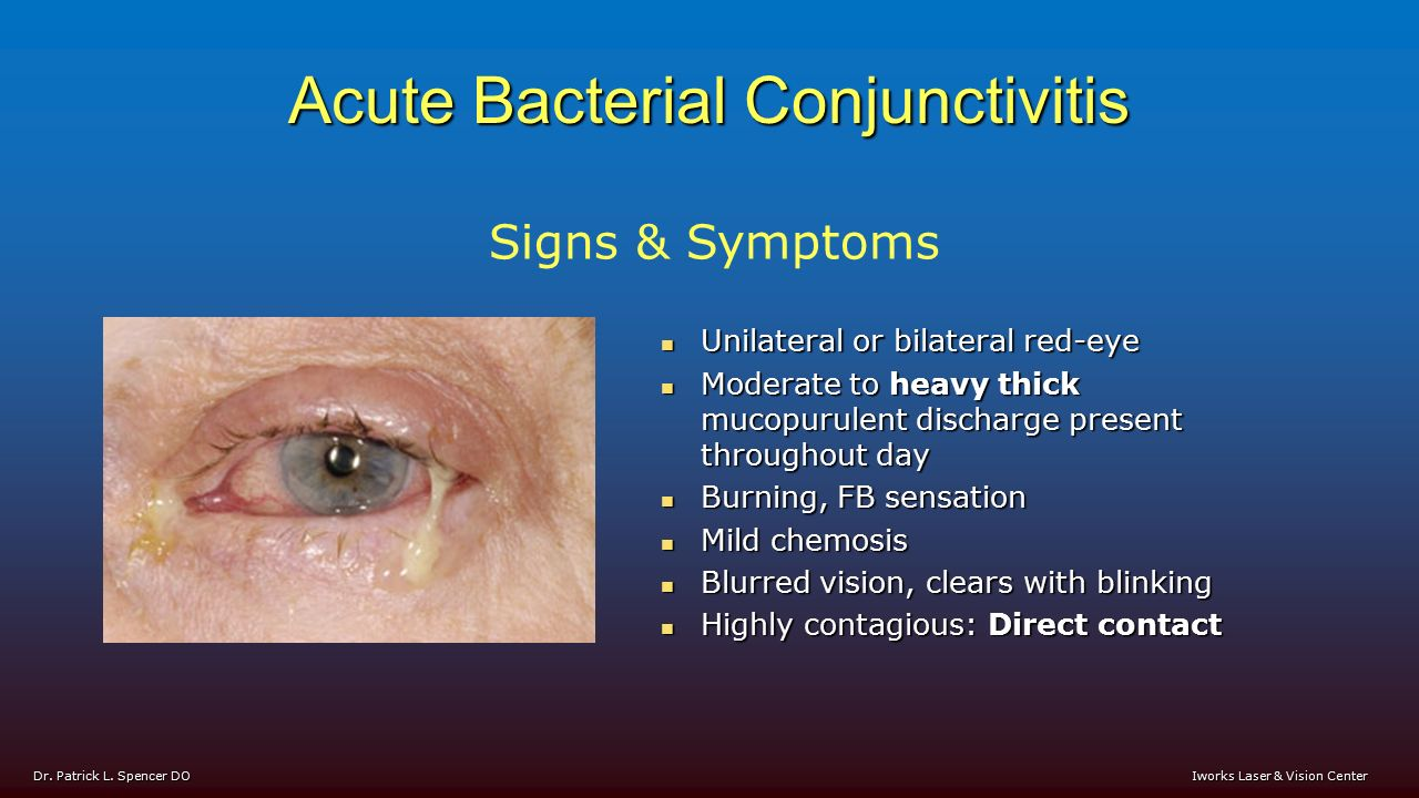 Bacterial conjunctivitis signs and symptoms include: - ppt