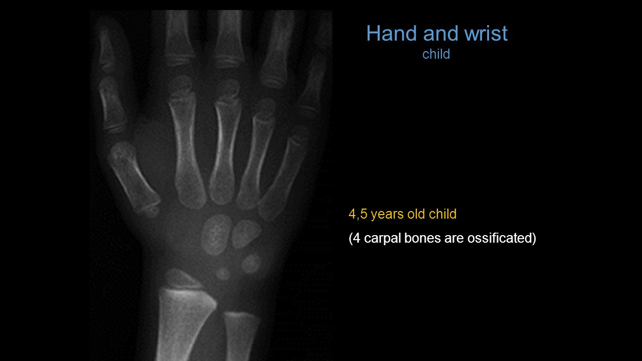 List Of X Rays Head Axial And Lateral Projection Ppt Video