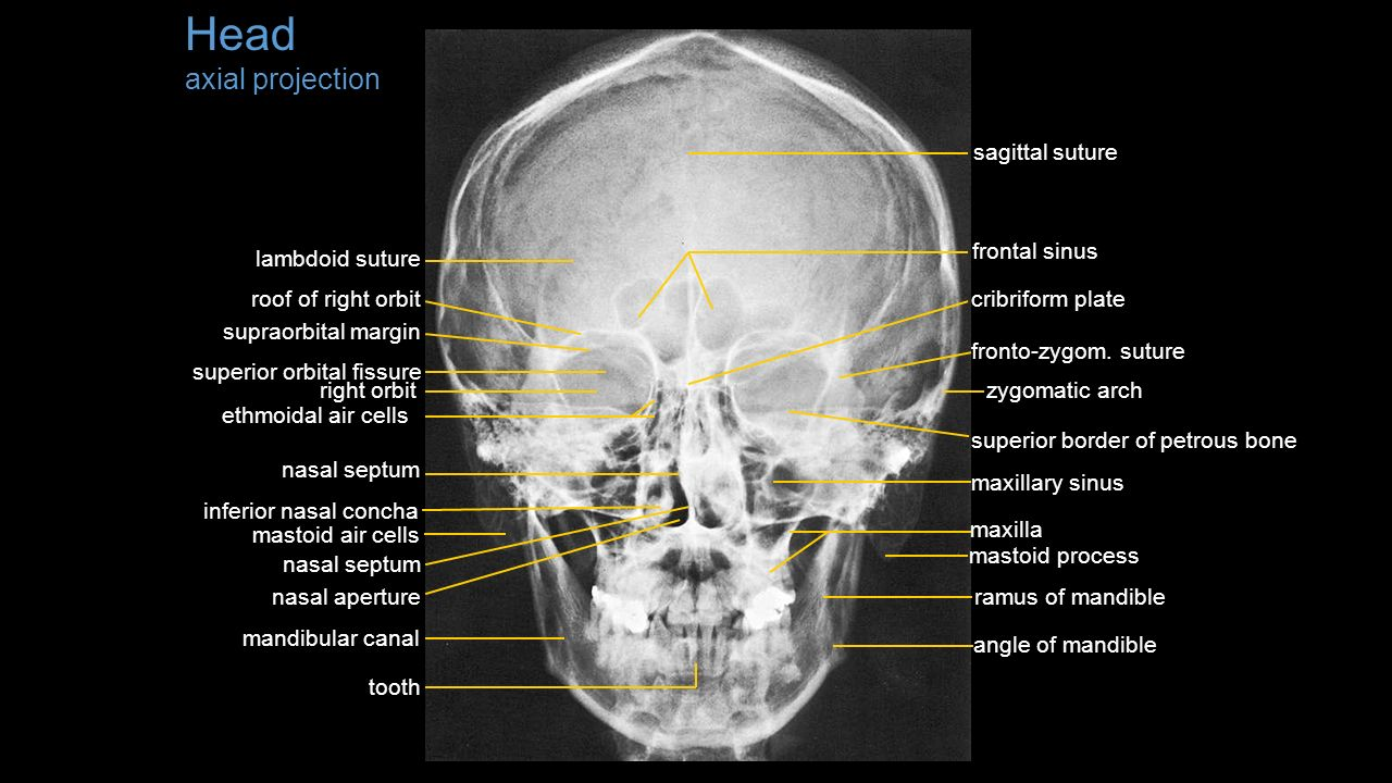 List of X-rays Head – axial and lateral projection - ppt video ...