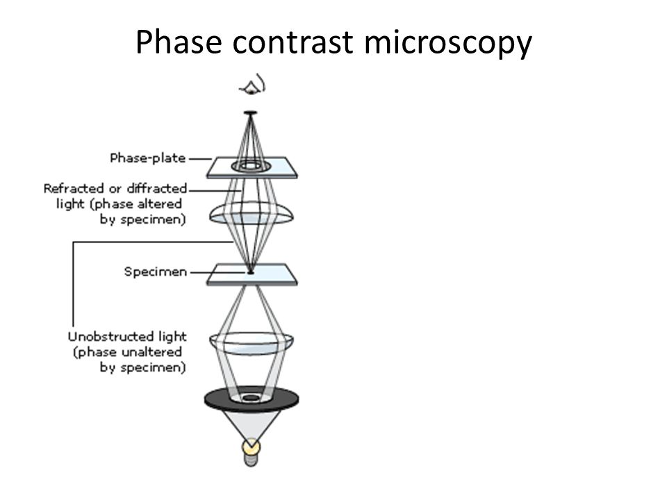Diagram of phase contrast microscope electrical work wiring diagram microscopy ppt video online download rh slideplayer com diagram of phase contrast microscope ray diagram of ccuart Image collections