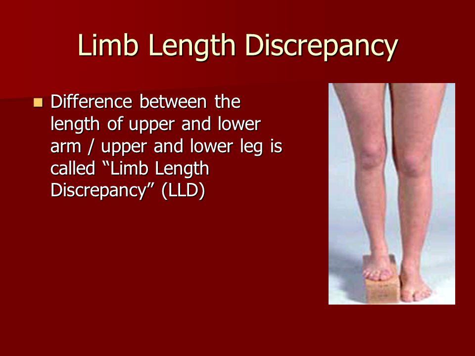 Pdf) methods for assessing leg length discrepancy.