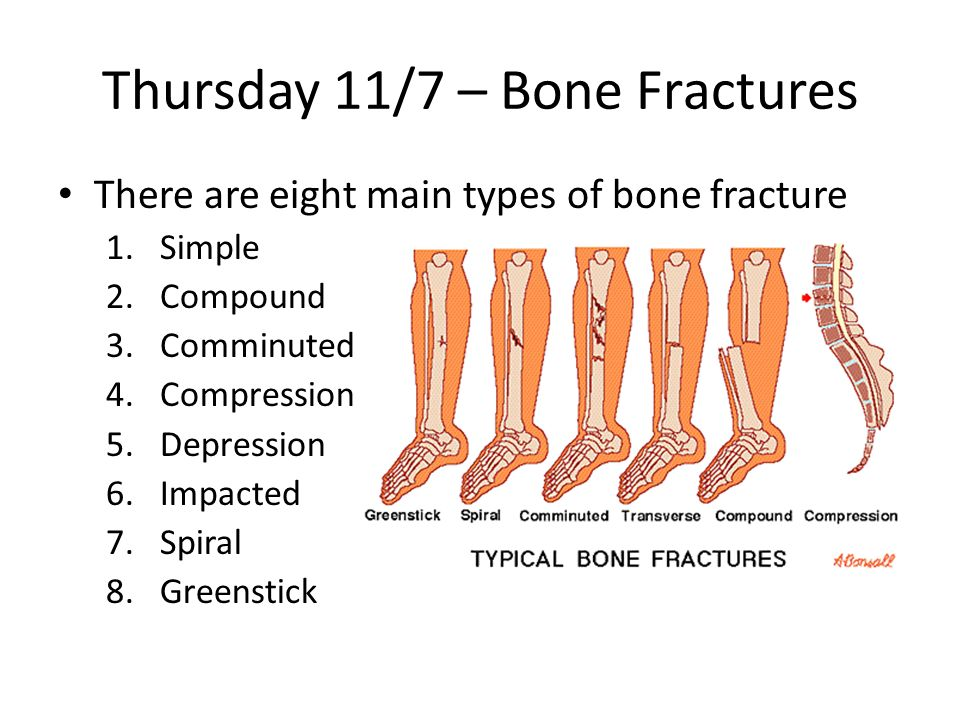 Thursday 1029 Ch 5 Bone Lt List The Functions Of The Skeletal