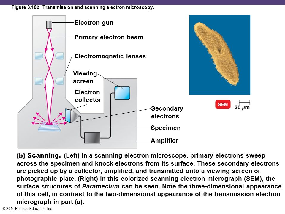 Figure 3.10b Transmission and scanning electron microscopy.