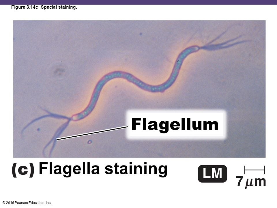 Figure 3.14c Special staining.