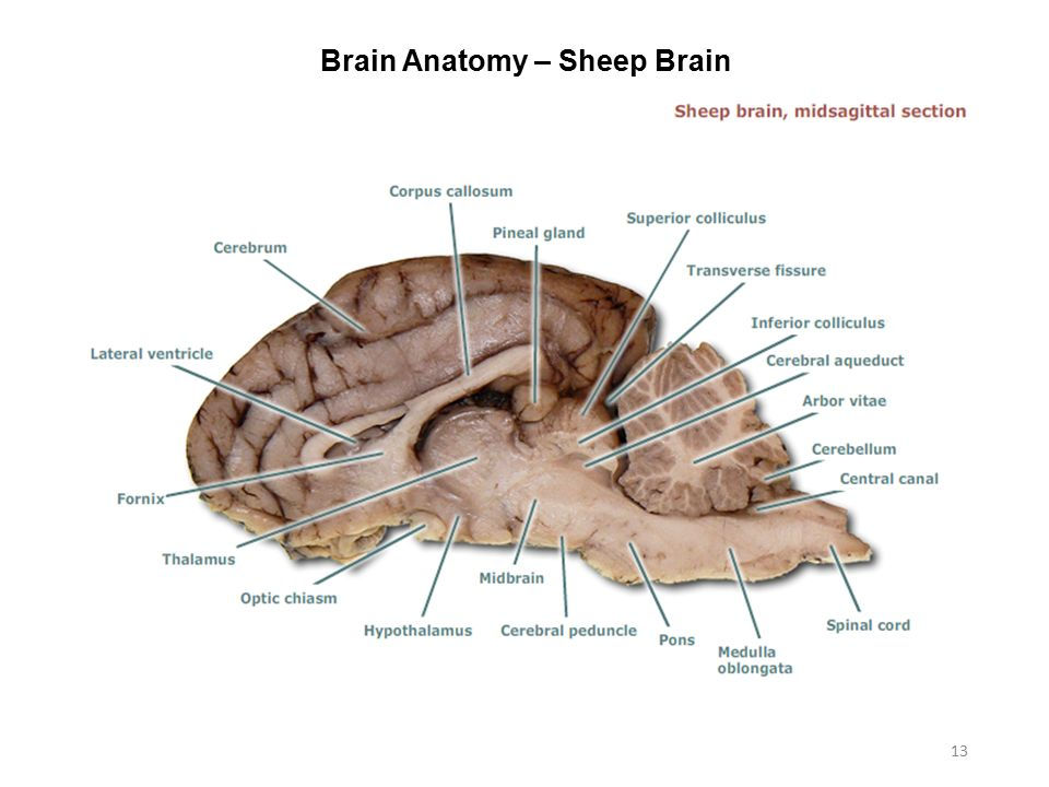 Tectum Sheep Brain Labeled Diagram - Application Wiring Diagram •