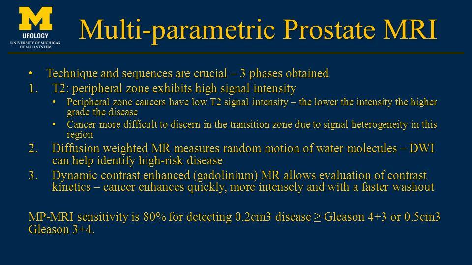 multiparametric prostate mri ppt