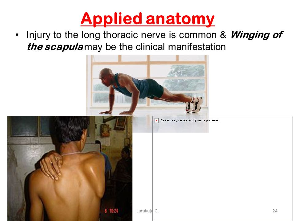 Fancy Clinical Anatomy Of Upper Limb Motif - Image of internal ...