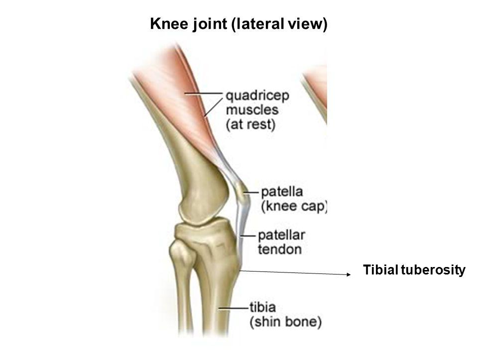 Bones of lower limb Hip bone Femur Tibia Fibula Patella Tarsal bones ...