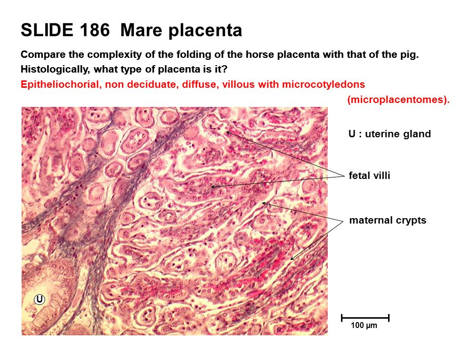 PLACENTA This resource is licensed under the Creative Commons ...
