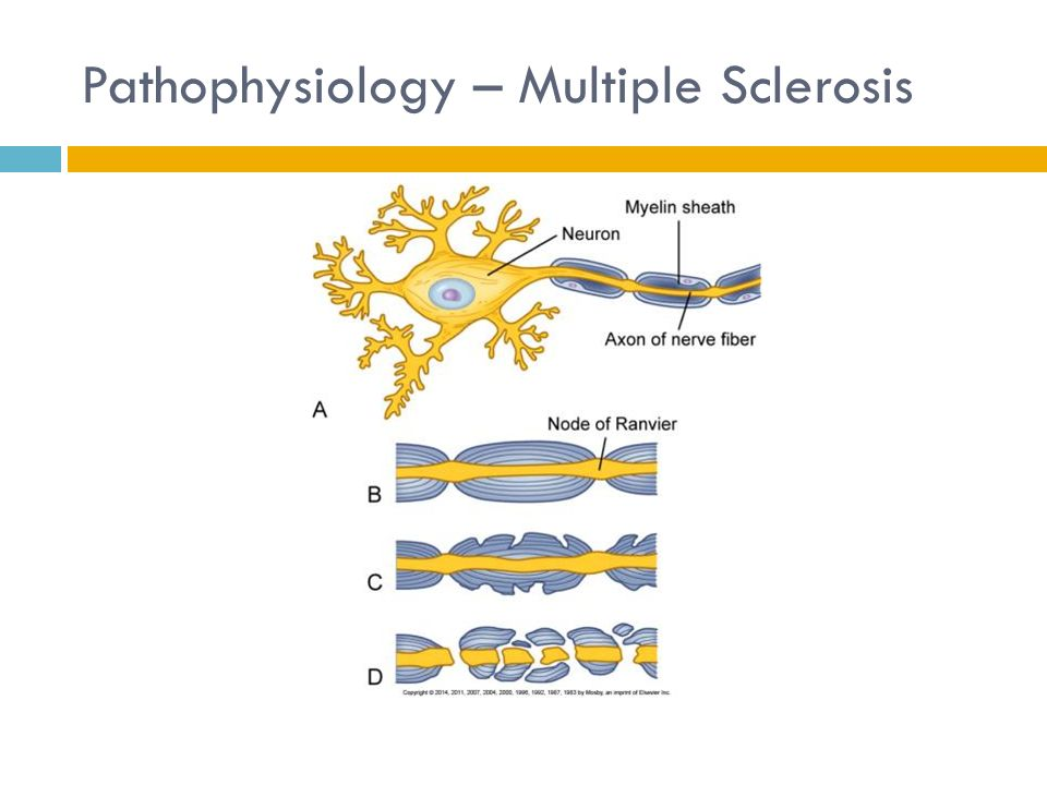 Use Of Ehealth And Mhealth Technology By Persons With Multiple Sclerosis