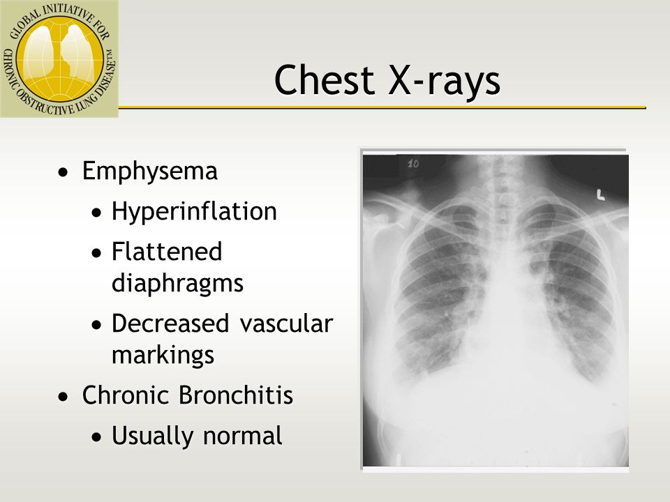 Chronic Obstructive Pulmonary Disease - ppt video online
