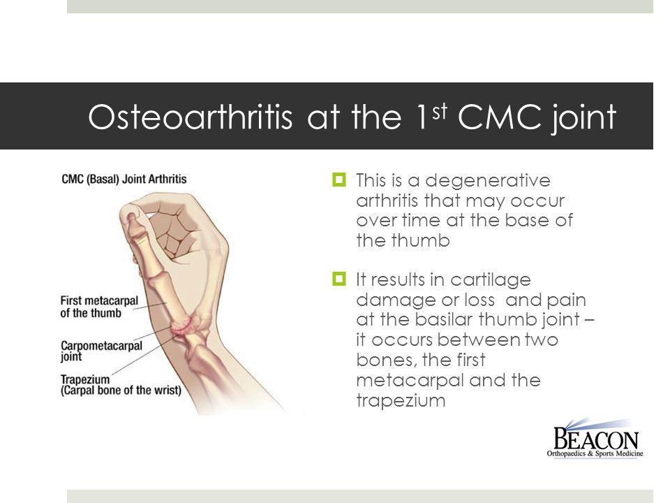 Osteoarthritis at the 1st CMC joint