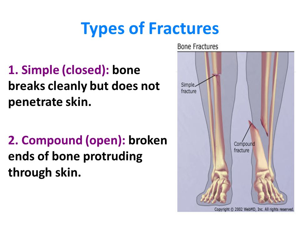 Bone Fractures Ppt Video Online Download