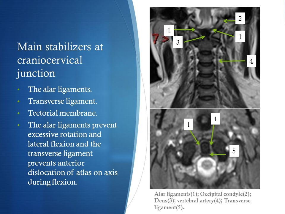Spinal Ligamentous Injuries Magnetic Resonance Imaging Evaluation ...