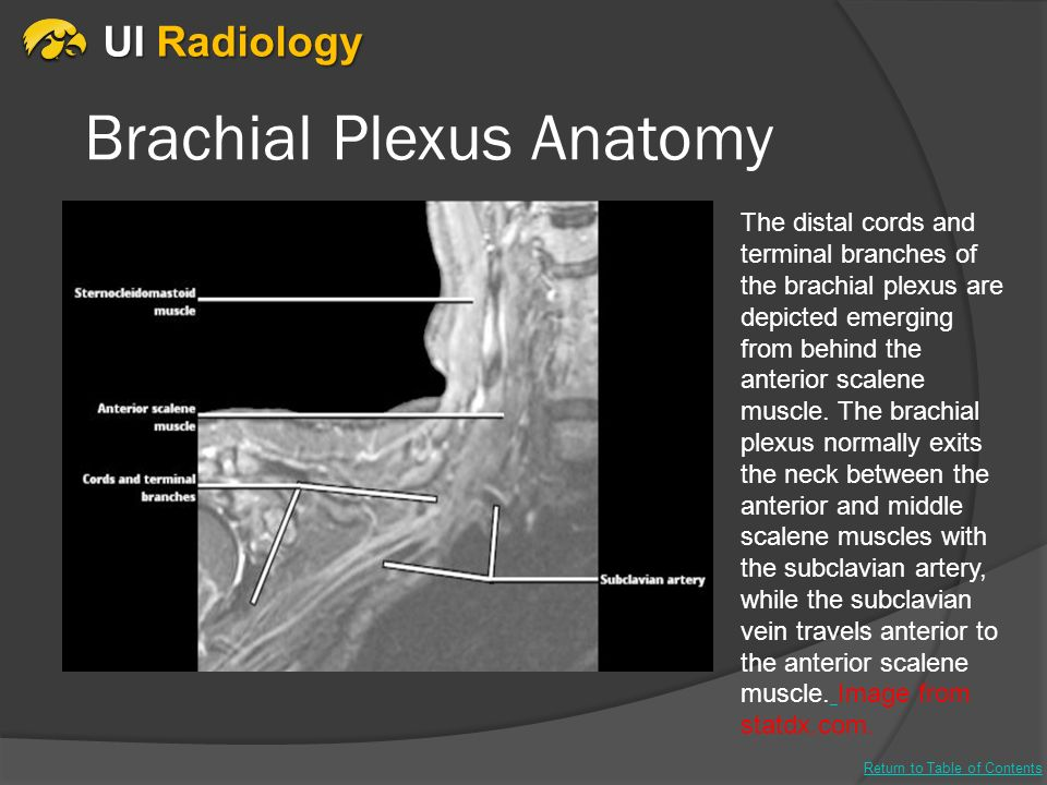 Beyond the Spinal Cord: Imaging of the Exiting Nerve Roots, Brachial ...