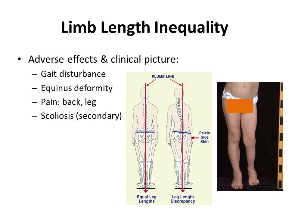 Common pediatric lower limb disorders ppt download.